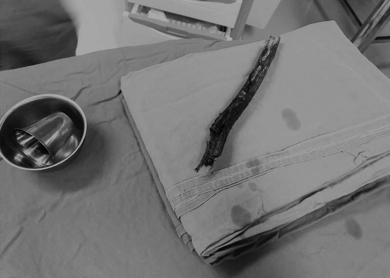 Dị vật là cành cây gỗ được lấy ra khỏi vùng mũi - mặt người bệnh